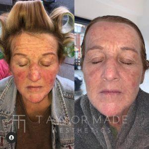 rosacea - skin treatment