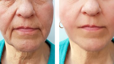 Dermal Fillers and Cheek Enhancements