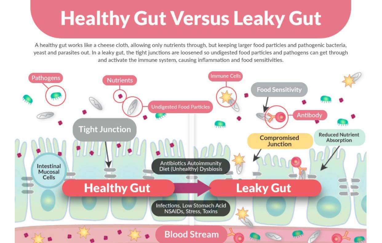 Healthy gut versus leaky gut